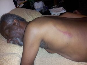 Lester Chambers rests at home after the assault.  (Photo courtesy Dylan Chambers)